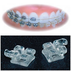 Tooth Coloured Braces parts